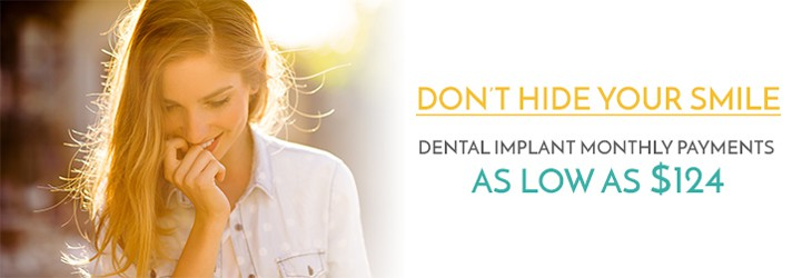 Downtown Seattle Dental Implants | Payment
